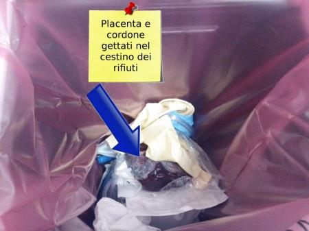 placenta-e-cordone-gettati-nel-cestino-mod-Copia