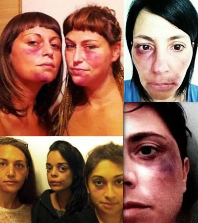 """Le ragazze che hanno aderito alla campagna del """"selfie brutto"""""""