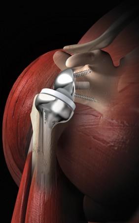 una protesi di spalla