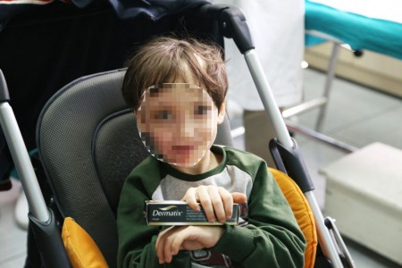 simone crema ospedale dermatologia ustioni censura foto ap (4)