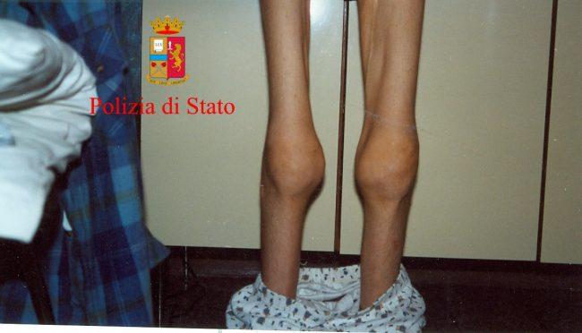 pianesi-malnutrizione-4-650x372