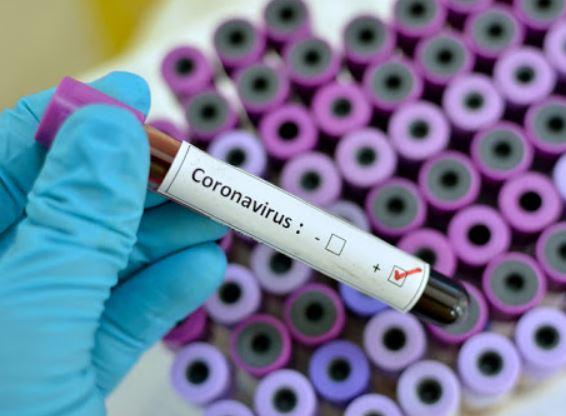 coronavirus-55