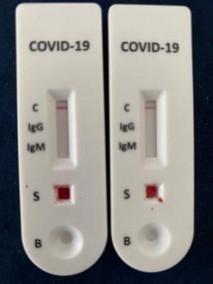 giessegi-test-sierologici